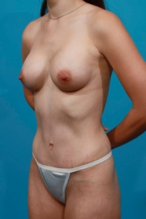 After Photo - Tummy Tuck - Case #2491 - Mommy Makeover - Oblique View