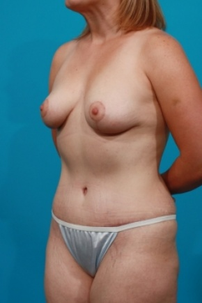 After Photo - Tummy Tuck - Case #2652 - Mommy Makeover - Oblique View