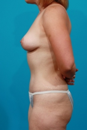 After Photo - Tummy Tuck - Case #2652 - Mommy Makeover - Lateral View