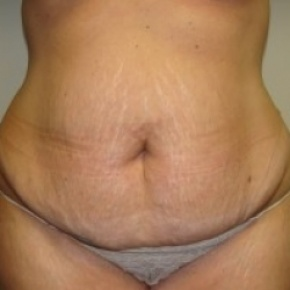 Before Photo - Tummy Tuck - Case #2665 - Frontal View