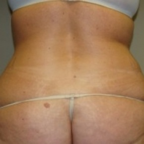 Before Photo - Tummy Tuck - Case #2665 - Posterior View