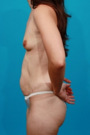 Before Photo - Tummy Tuck - Case #2491 - Mommy Makeover - Lateral View