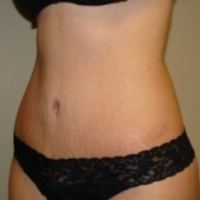 After Photo - Tummy Tuck - Case #2666 - Oblique View