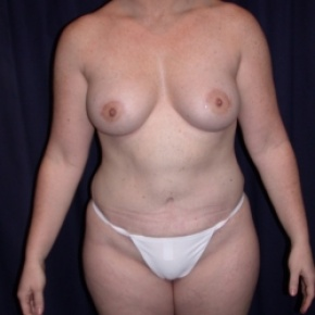 After Photo - Tummy Tuck - Case #2738 - Mommy Make Over: Tummy Tuck and Breast Augmentation - Frontal View