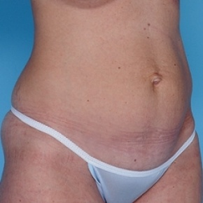 Before Photo - Tummy Tuck - Case #2603 - Lateral View