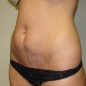 Before Photo - Tummy Tuck - Case #2670 - Oblique View