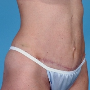 After Photo - Tummy Tuck - Case #2603 - Lateral View