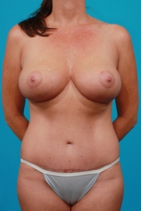 After Photo - Tummy Tuck - Case #2492 - Mommy Makeover - Frontal View
