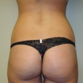 Before Photo - Tummy Tuck - Case #2670 - Posterior View