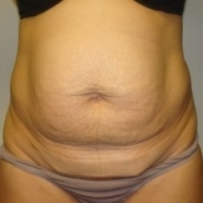 Before Photo - Tummy Tuck - Case #2671 - Frontal View
