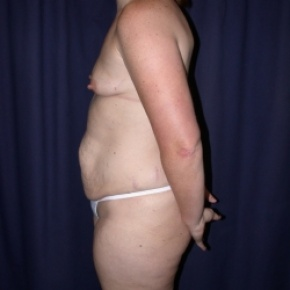 Before Photo - Tummy Tuck - Case #2738 - Mommy Make Over: Tummy Tuck and Breast Augmentation - Lateral View