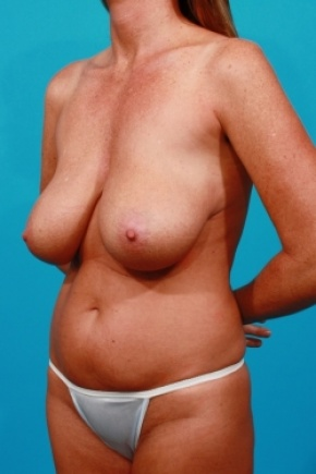 Before Photo - Tummy Tuck - Case #2492 - Mommy Makeover - Oblique View