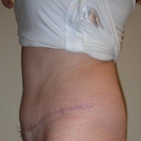 After Photo - Tummy Tuck - Case #2725 - Tummy Tuck & Lipo of Love Handles - Lateral View