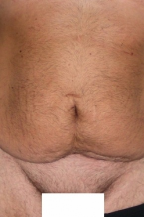 Before Photo - Tummy Tuck - Case #2732 - Male Tummy Tuck - Frontal View