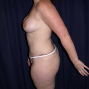 After Photo - Tummy Tuck - Case #2738 - Mommy Make Over: Tummy Tuck and Breast Augmentation - Lateral View