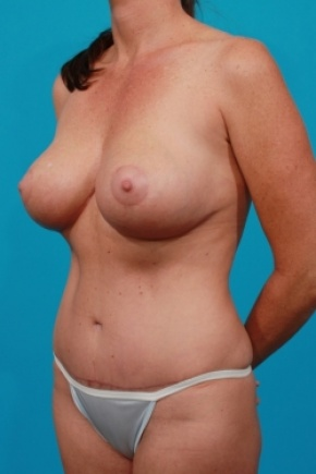 After Photo - Tummy Tuck - Case #2492 - Mommy Makeover - Oblique View