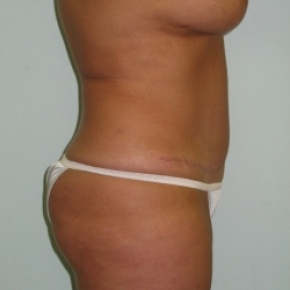 After Photo - Tummy Tuck - Case #2768 - Oblique View