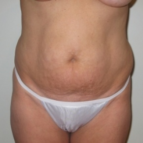 Before Photo - Tummy Tuck - Case #2769 - Frontal View