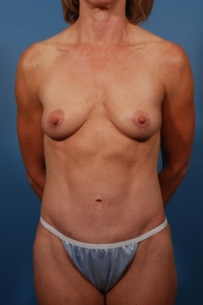 After Photo - Tummy Tuck - Case #2778 - Mommy Makeover - Frontal View