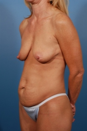 Before Photo - Tummy Tuck - Case #2778 - Mommy Makeover - Oblique View
