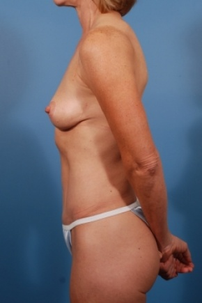 After Photo - Tummy Tuck - Case #2778 - Mommy Makeover - Lateral View
