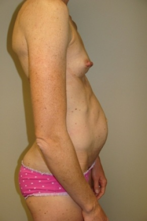 Before Photo - Tummy Tuck - Case #2791 - Mommy Makeover - Posterior Oblique View