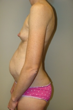 Before Photo - Tummy Tuck - Case #2791 - Mommy Makeover - Posterior View