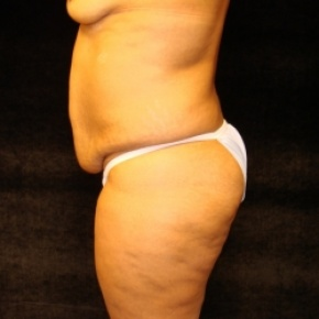 Before Photo - Tummy Tuck - Case #2802 - Full Abdominoplasty with Liposuction Abdomen, Waist, Flanks, and Dorsal Roll - Lateral View