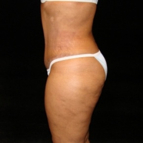 After Photo - Tummy Tuck - Case #2802 - Full Abdominoplasty with Liposuction Abdomen, Waist, Flanks, and Dorsal Roll - Lateral View