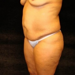 Before Photo - Tummy Tuck - Case #2802 - Full Abdominoplasty with Liposuction Abdomen, Waist, Flanks, and Dorsal Roll - Posterior Oblique View