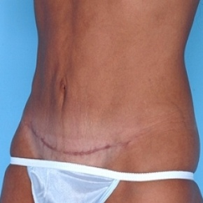 After Photo - Tummy Tuck - Case #2604 - Lateral View