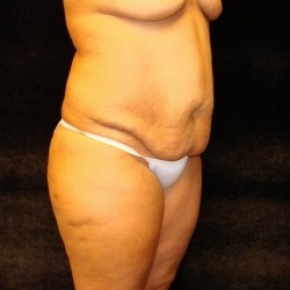 Before Photo - Tummy Tuck - Case #2802 - Full Abdominoplasty with Liposuction Abdomen, Waist, Flanks, and Dorsal Roll - Worm's Eye View