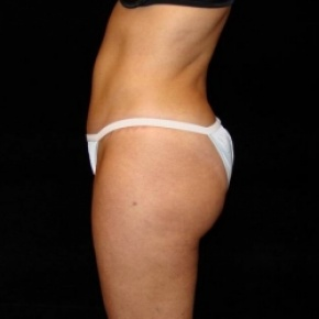 After Photo - Tummy Tuck - Case #2803 - Full Abdominoplasty with Liposuction of Abdomen, Waist, Flanks, Inner and Outer Thighs - Lateral View