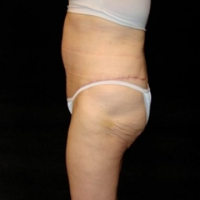 After Photo - Tummy Tuck - Case #2804 - Extended Abdominoplasty with Liposuction of Abdomen - Oblique View
