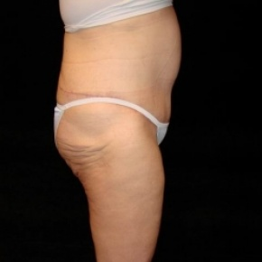 After Photo - Tummy Tuck - Case #2804 - Extended Abdominoplasty with Liposuction of Abdomen - Lateral View