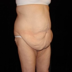 Before Photo - Tummy Tuck - Case #2804 - Extended Abdominoplasty with Liposuction of Abdomen - Posterior Oblique View