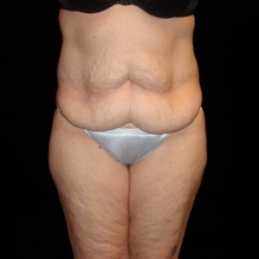Before Photo - Tummy Tuck - Case #2806 - Full Abdominoplasty with Liposuction of Abdomen, Waist, and Flanks - Frontal View