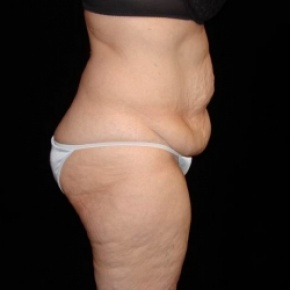 Before Photo - Tummy Tuck - Case #2806 - Full Abdominoplasty with Liposuction of Abdomen, Waist, and Flanks - Lateral View