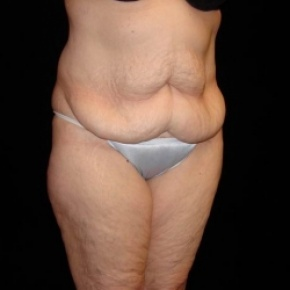 Before Photo - Tummy Tuck - Case #2806 - Full Abdominoplasty with Liposuction of Abdomen, Waist, and Flanks - Posterior Oblique View