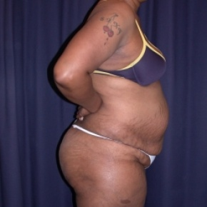 Before Photo - Tummy Tuck - Case #2739 - Tummy Tuck/ Lipo-Abdominoplasty - Lateral View