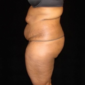 Before Photo - Tummy Tuck - Case #2807 - Extended Abdominoplasty with Liposuction of Abdomen, Waist, Flanks, Dorsal Roll, and Outer Thighs - Oblique View