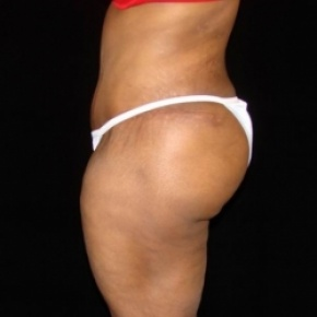 After Photo - Tummy Tuck - Case #2807 - Extended Abdominoplasty with Liposuction of Abdomen, Waist, Flanks, Dorsal Roll, and Outer Thighs - Oblique View