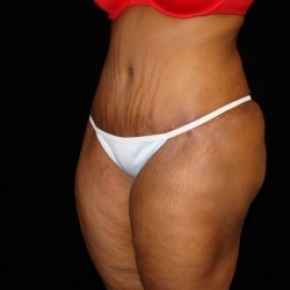 After Photo - Tummy Tuck - Case #2807 - Extended Abdominoplasty with Liposuction of Abdomen, Waist, Flanks, Dorsal Roll, and Outer Thighs - Posterior View