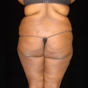 Before Photo - Tummy Tuck - Case #2807 - Extended Abdominoplasty with Liposuction of Abdomen, Waist, Flanks, Dorsal Roll, and Outer Thighs - Worm's Eye View