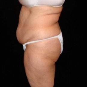 Before Photo - Tummy Tuck - Case #2809 - Extended Abdominoplasty with Liposuction Abdomen, Waist, Flanks, Dorsal Roll, and Inner Thighs - Lateral View
