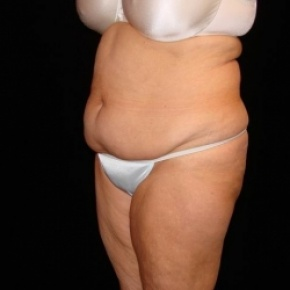 Before Photo - Tummy Tuck - Case #2809 - Extended Abdominoplasty with Liposuction Abdomen, Waist, Flanks, Dorsal Roll, and Inner Thighs - Posterior View