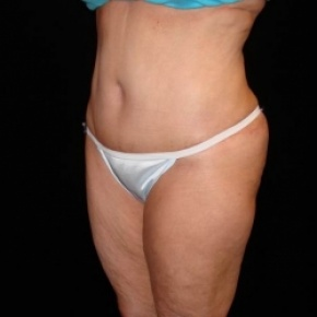 After Photo - Tummy Tuck - Case #2809 - Extended Abdominoplasty with Liposuction Abdomen, Waist, Flanks, Dorsal Roll, and Inner Thighs - Posterior View