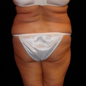 Before Photo - Tummy Tuck - Case #2809 - Extended Abdominoplasty with Liposuction Abdomen, Waist, Flanks, Dorsal Roll, and Inner Thighs - Worm's Eye View