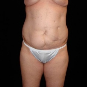 Before Photo - Tummy Tuck - Case #2810 - Extended Abdominoplasty with Liposcution of Abdomen, Waist, and Flanks - Frontal View