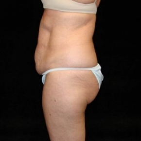 Before Photo - Tummy Tuck - Case #2812 - Extended Mini Abdominoplasty with Liposuction of Abdomen, Waist, and Flanks - Oblique View